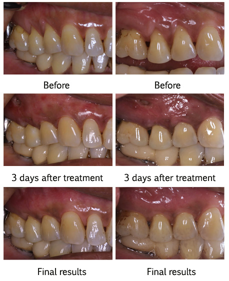 Before and After Images, Dentist San Francisco