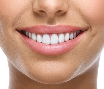 Professional teeth whitening is quick, effective, and worthwhile
