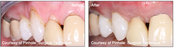 Patients Pinhole Surgical Technique Before And After results