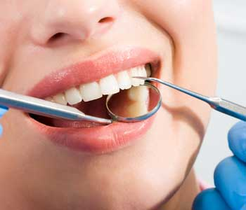 San Francisco dentist explains how to care for dental implants