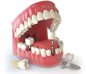 Dental implants near me san francisco