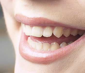 How can gum recession be treated