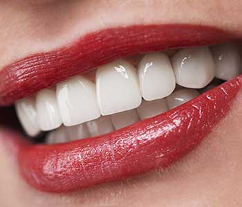 Are There Alternatives To Porcelain Veneers?