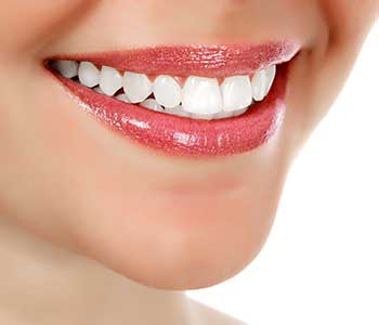 Are San Francisco Tooth Veneers right for you?