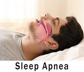 San Francisco dentist treats snoring and obstructive sleep apnea