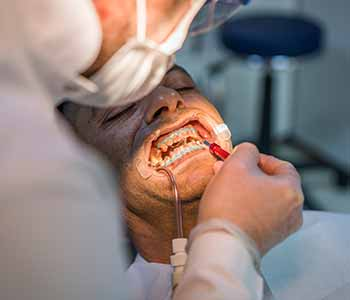 top oral surgeons in San Francisco, CA