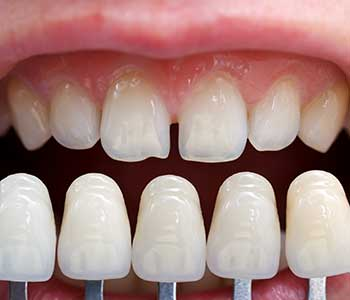 "San Francisco residents ask, ""How can porcelain veneers improve the appearance of my teeth?"""