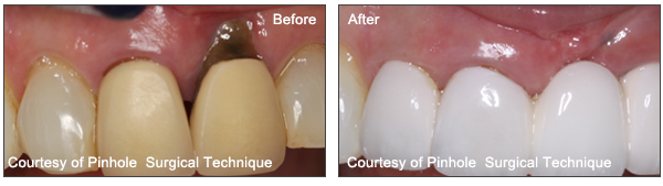 PatientsPinhole Surgical Technique Before And After Images