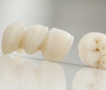 Dentist near Daly City explains the best way to care for a dental bridge