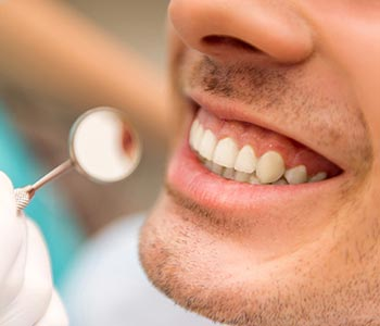 Cosmetic Dentistry Before and After in San Francisco