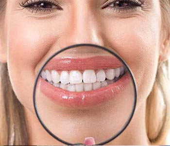 Cosmetic Teeth Whitening San Francisco from Leo Arellano DDS PC