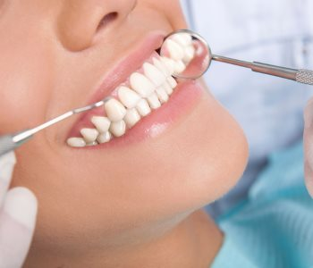 Cost of Dental Crowns from San Francisco dentist