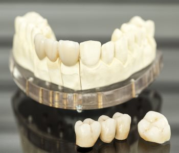 Dental Crowns Bridges San Francisco