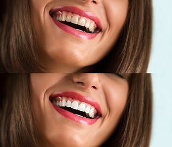 Dentist in San Francisco, CA helps patients brighten their smiles with home teeth whitening