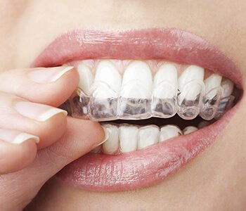 Invisalign Dentist San Francisco