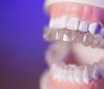 Invisalign v. Braces San Francisco