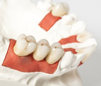 Removable Bridges from San Francisco dentist