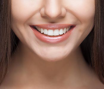 Smile makeover in San Francisco by Dr. Leo Arellano