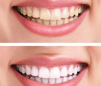 San Francisco smiles sparkle with professional teeth whitening products