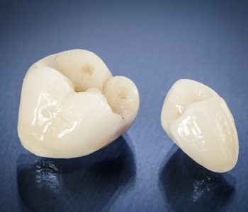 Tooth Crown Cost Daly City from CA dentist
