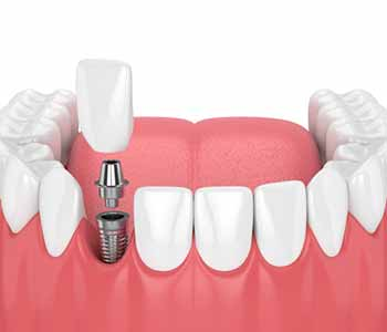 The routine care of implants is quite similar to the daily care of natural teeth.