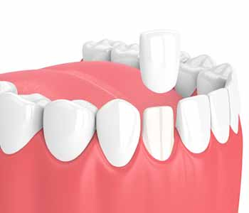 What is the purpose of porcelain veneers for San Francisco, CA area patients?