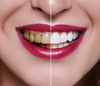 Professional teeth whitening offered by a cosmetic dentist in San Francisco, CA