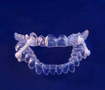 Image of a Oral Appliance