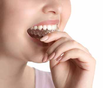 Dr. Leo Arellano is proud to offer an alternative known as Invisalign. San Francisco, CA area dentist explains the benefits of Invisalign!