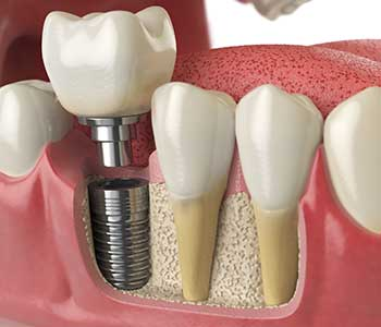 Personalized Dental Implants for Tooth Replacement - San Francisco, CA