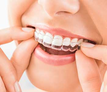 Exceptional teeth aligner Invisalign clear braces - San Francisco, CA