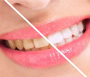 Best Teeth Whitening techniques - San Francisco, CA