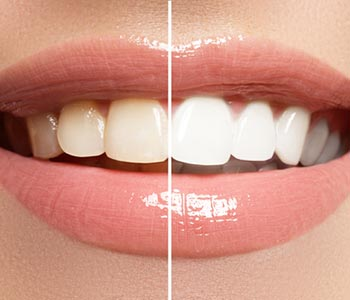 What is Teeth Whitening in San Francisco area