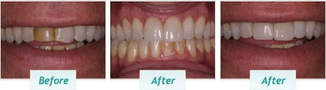 Cosmetic Dentistry – BNA Image – 01