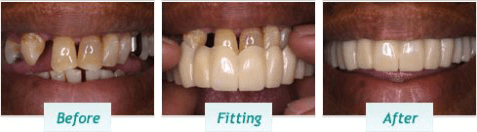 Cosmetic Dentistry – BNA Image – 02