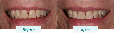 Cosmetic Dentistry – BNA Image – 04
