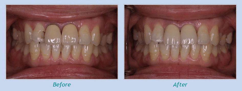 Dentists in San Francisco, CA explain before and After Gum disease treatment results