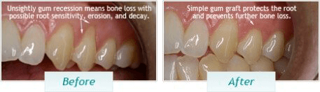 Gum Disease - BNA Image - 01
