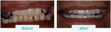 Gum Disease – BNA Image – 02