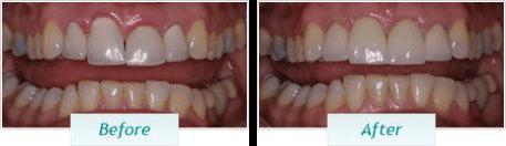 Gum Disease – BNA Image – 03