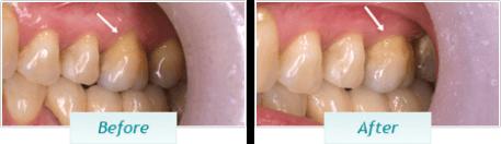 Gum Disease – BNA Image – 04