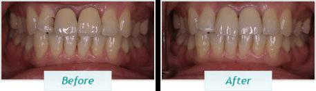 Gum Disease – BNA Image – 06