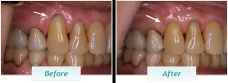 Gum Disease – BNA Image – 07