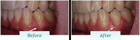 Gum Disease – BNA Image – 08