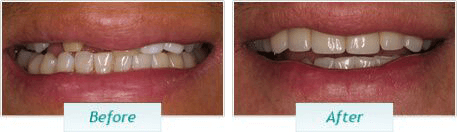 Dental Implants – BNA Image – 01-1