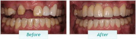 Dental Implants – BNA Image – 01