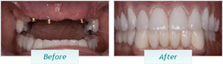 Dental Implants – BNA Image – 03