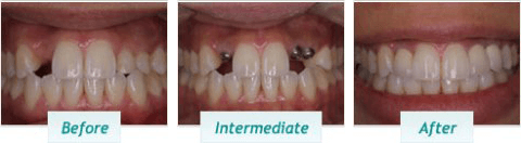 Dental Implants – BNA Image – 06