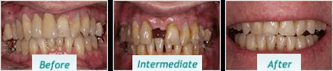 Dental Implants – BNA Image – 11