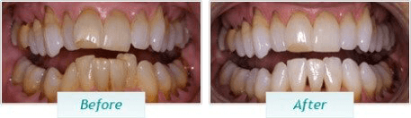 Teeth Whitening – BNA Image – 02